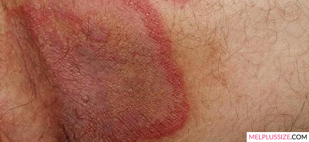 Alergia na virilha fotos 72